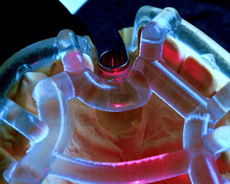 3Dデータとガイドを使った誤差の少ない治療を徹底。